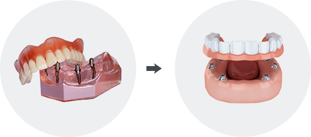 Implant Retained Dentures Image1