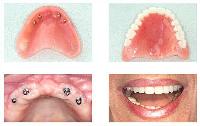 Implant Retained Dentures Image2