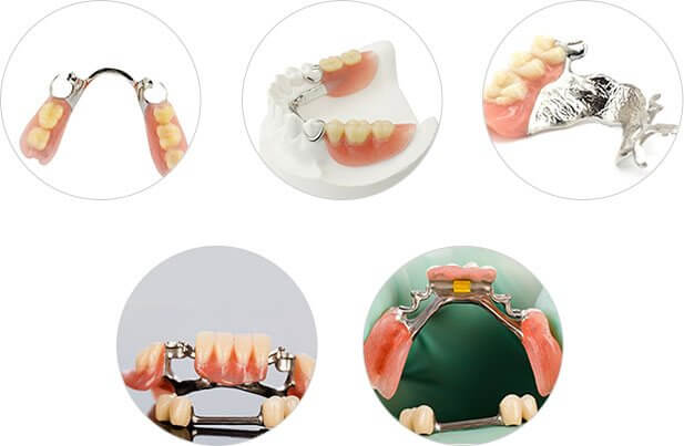 Partial Dentures Image3